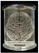 Cerveau à vendre !